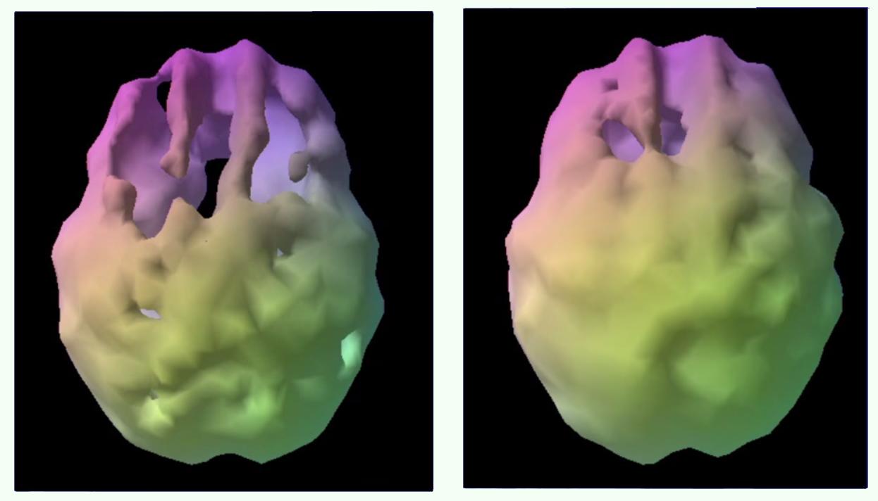 mozek pred a po leceni